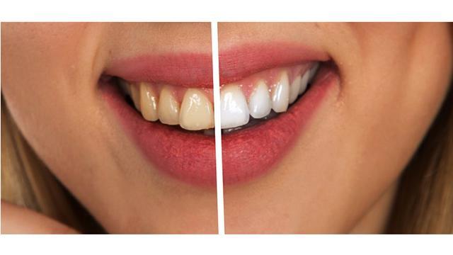 洗牙界的冤屈:谁告诉你洗牙等于锯牙